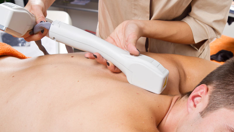 how to get rid of back hair - laser hair removal